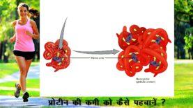 प्रोटीन की कमी को कैसे पहचानें Hindi Health Tips