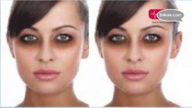 आंखों के नीचे काले गडढे या Dark Circle से कैसे पाएं निजात Hindi Health Tips