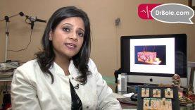 Precautions for Acne Dr  Deepali Bhardwaj Skin & Hair Specialist_New Delhi_DrBole.com
